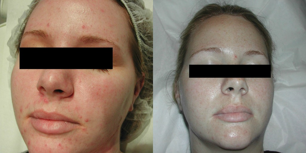 glycolic acid acne