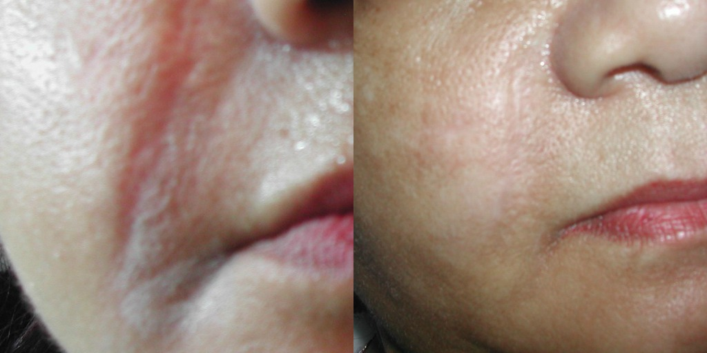 Before Amp After Photos Park Slope Dermatology Brooklyn
