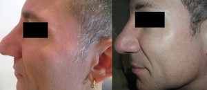 Before Fraxel - Sun Damage with large pores (left) After 1 month post Fraxel #3 (right)