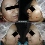Before - Melasma & After - One (1) Fraxel