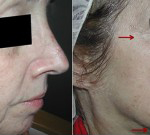 Fraxel re:store Laser - Skin Tightening & Wrinkle Reduction