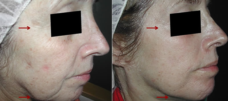 before and after photos for fraxel laser
