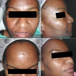 Before - Hyperpigmentation & After - One (1) Fraxel