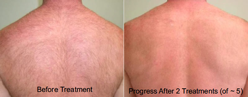 Before and after picture of back hair removal