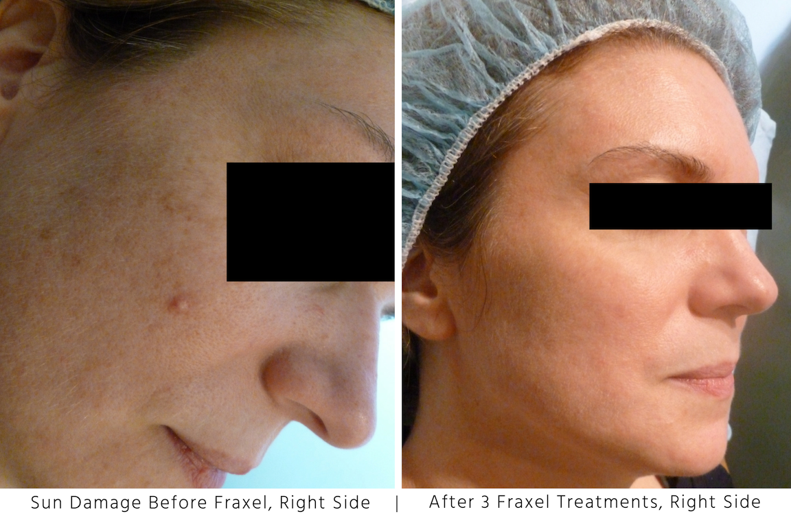 Sun Damage Before and After Fraxel Left Side