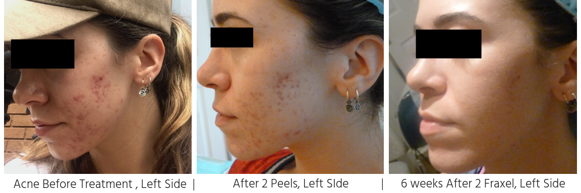 Acne & Scarring before treatment , right side