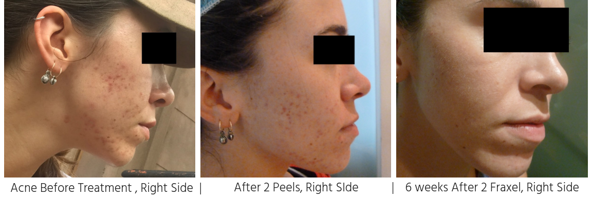 Acne & Scarring, right side