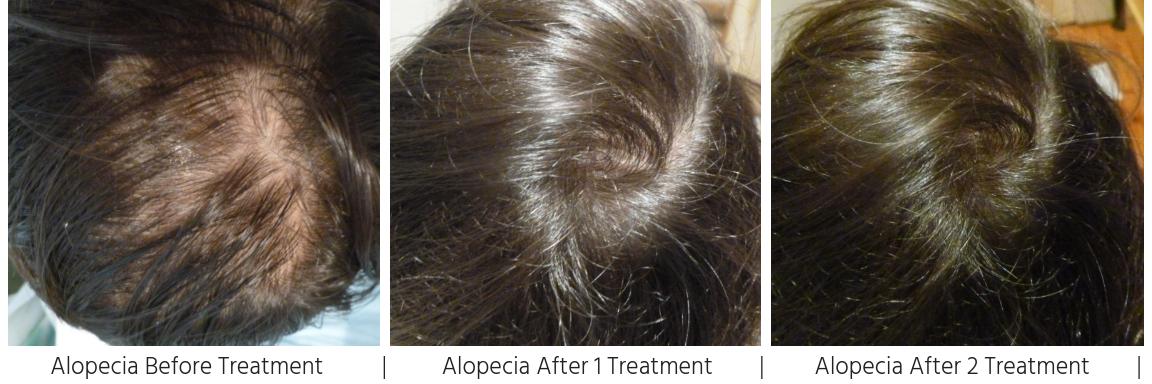 Alopecia Hairloss Treatment