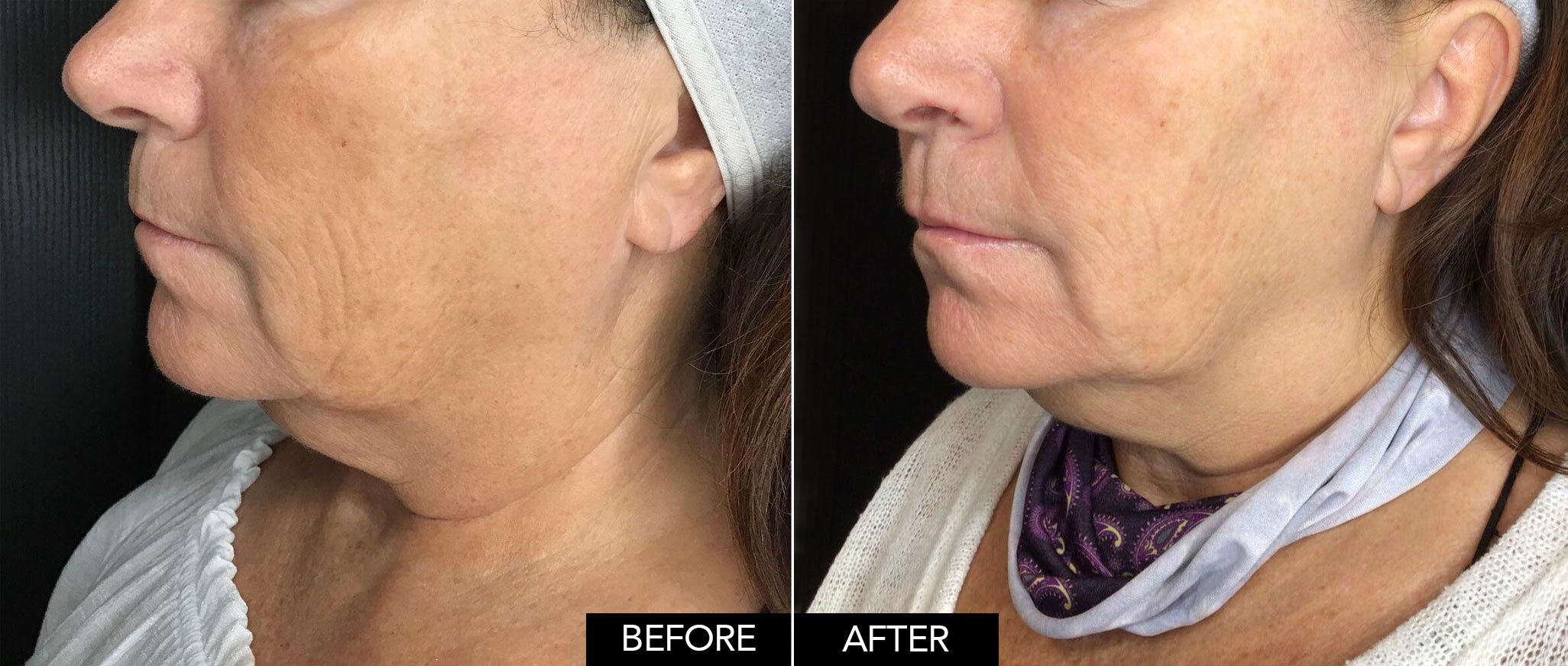Before & After Virtue RF Microneedling