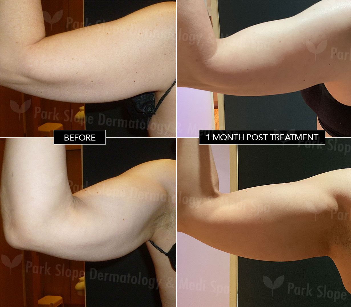 Arms Before & After Coolsculpting