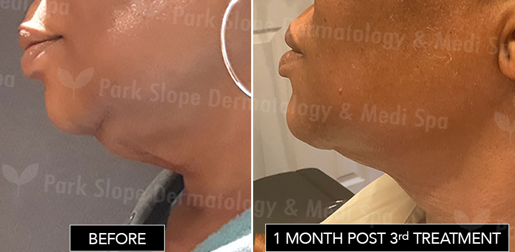Submental Fat Before & After Coolsculpting